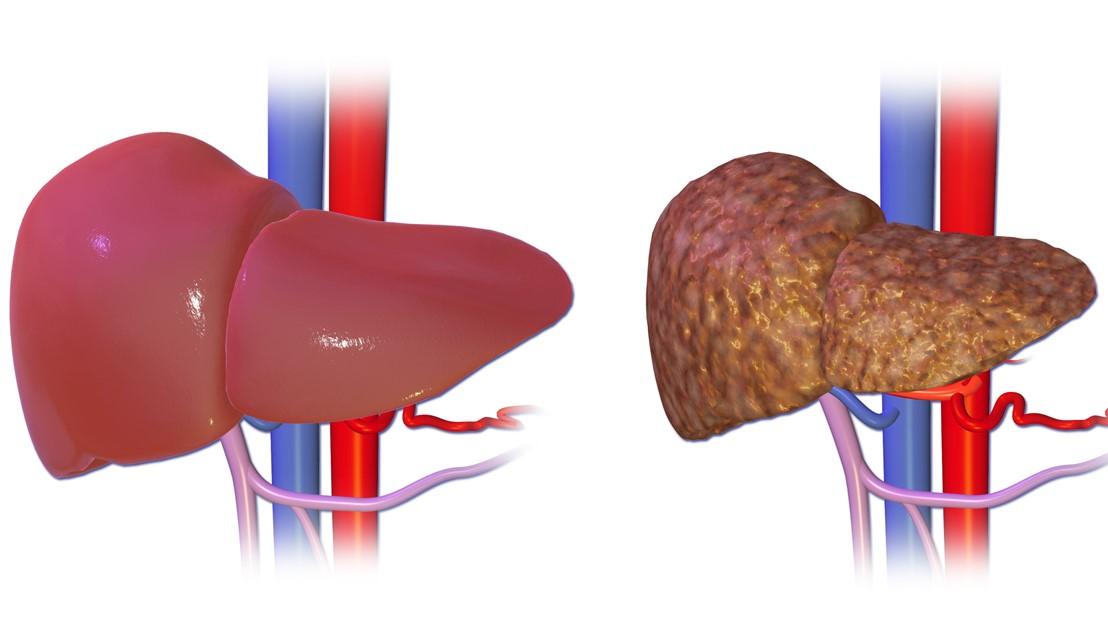 Quá trình từ gan khỏe mạnh đến tình trạng xơ gan