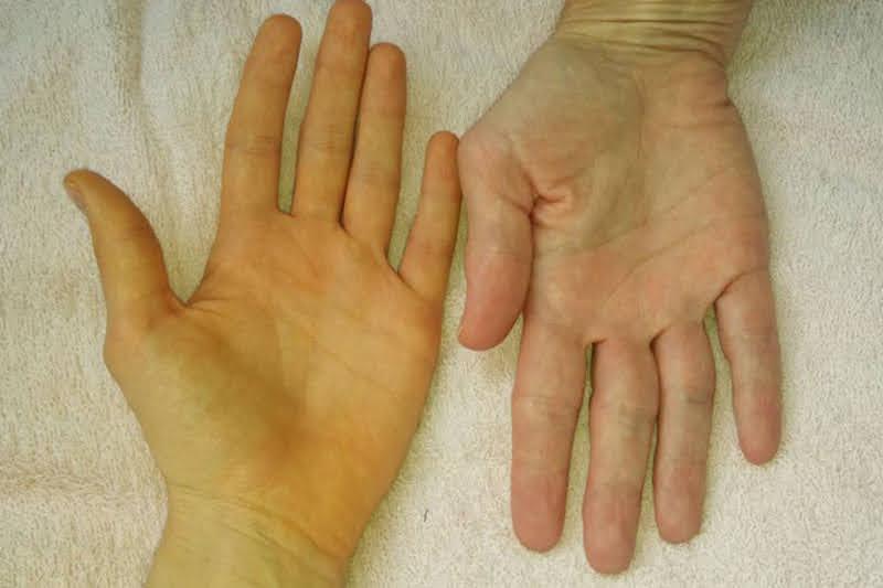 Vàng da là dấu hiệu rõ ràng cảnh báo tình trạng của gan