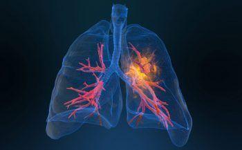 Bệnh ung thư phổi có lây không – Yếu tố nguy cơ và cách phòng ngừa