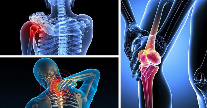 Ung thư xương là căn bệnh hiếm gặp so với các loại bệnh ung thư khác hiện nay