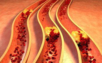 Cách giảm mỡ máu bài thuốc đơn giản mà cực kỳ hiệu quả