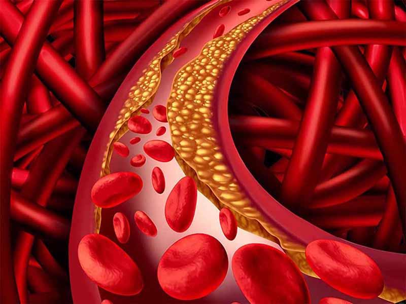 Sử dụng nhiều chất béo trong bữa ăn hàng ngày gây bệnh máu nhiễm mỡ