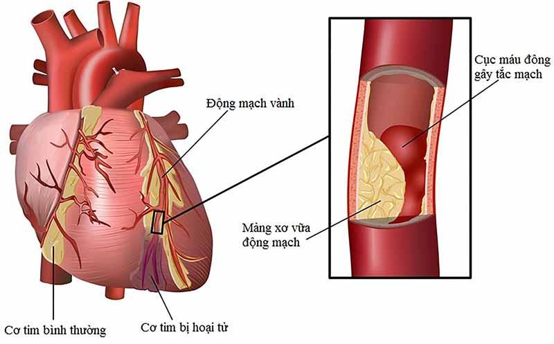 Mỡ máu cao dễ khiến người bệnh dễ mắc các bệnh về tim mạch