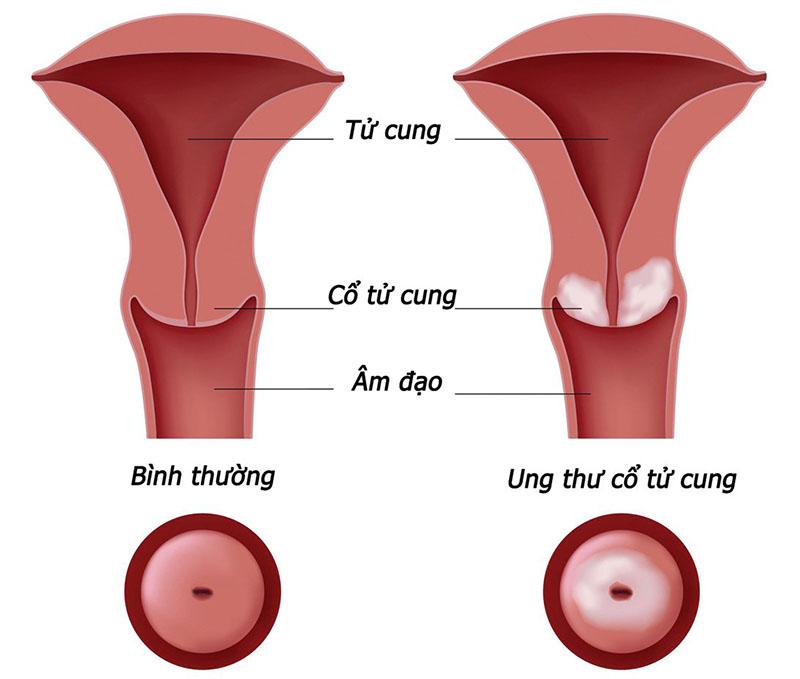 Ung thư cổ tử cung là bệnh xếp hàng đầu về mức độ phổ biến ở nữ giới trên toàn cầu
