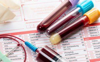 Cùng tìm hiểu xét nghiệm máu có phát hiện ung thư không?