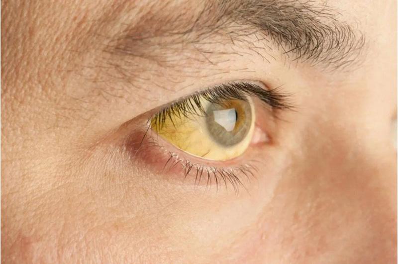 Vàng mắt là một trong những dấu hiệu ung thư gan