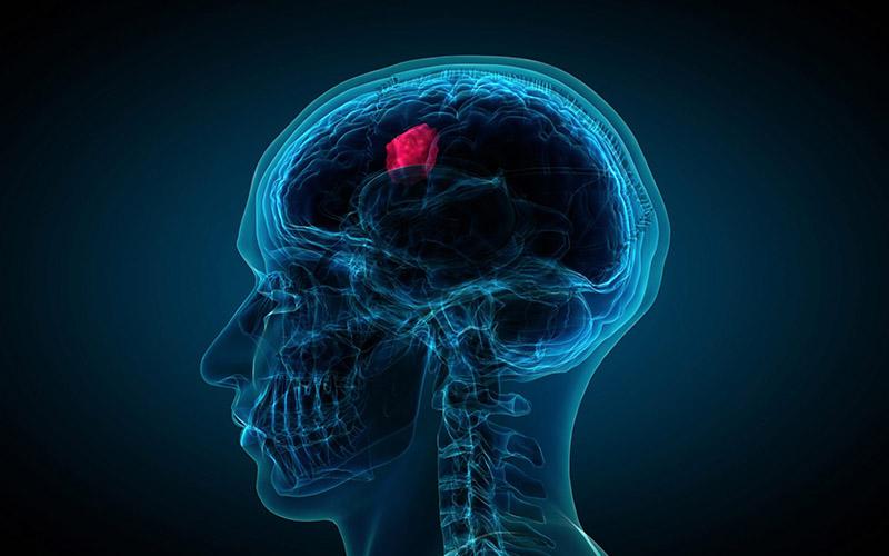 Minh họa khối u trong não