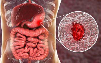 Đâu là các biện pháp chữa viêm loét dạ dày hành tá tràng hiệu quả?