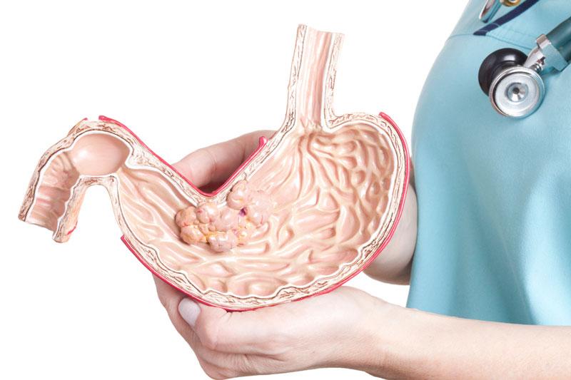 Điều trị ung thư dạ dày bằng phương pháp hóa trị