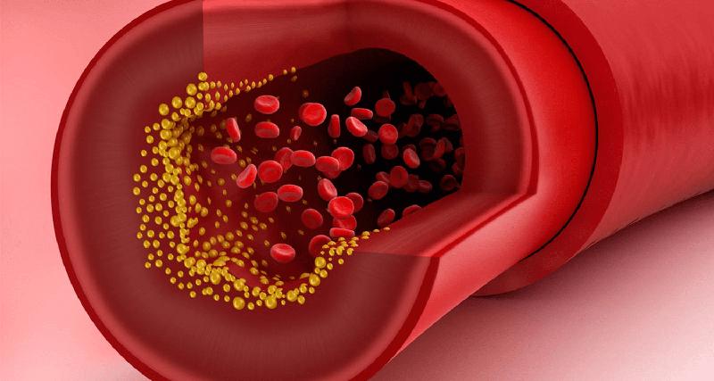 Fucoidan giúp giảm hàm lượng cholesterol trong máu, phòng ngừa bệnh mỡ máu cao