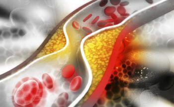 Cách giảm mỡ trong máu hiệu quả ít người biết