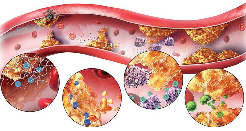 Bệnh máu nhiễm mỡ (Hình ảnh minh họa)