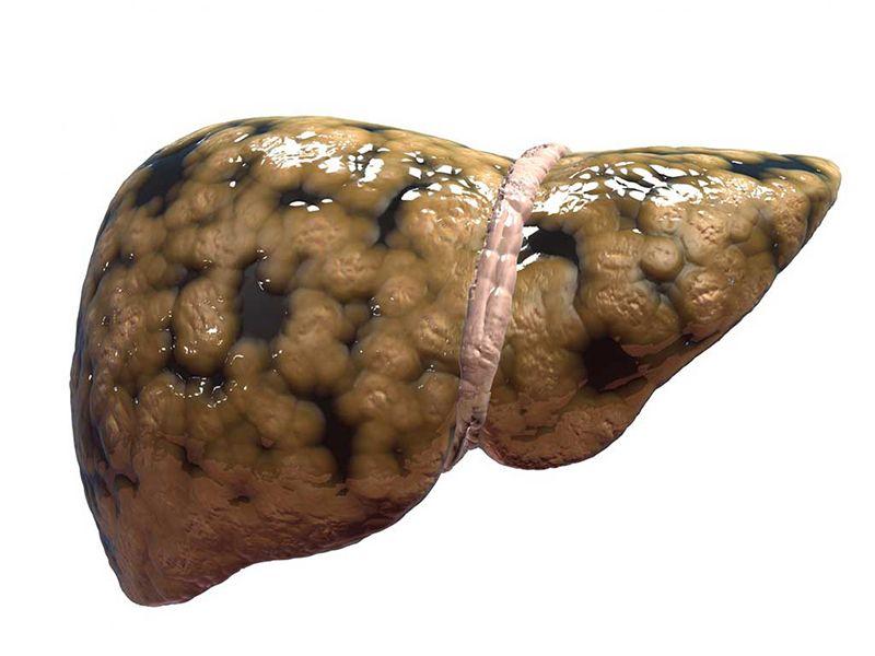 Gan nhiễm mỡ là một trong những biến chứng nguy hiểm của bệnh, tình trạng kéo dài có thể dẫn đến ung thư gan