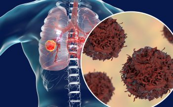 Người mắc bệnh ung thư phổi giai đoạn cuối có lây không? Cần lưu ý gì?