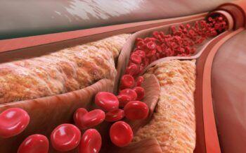 Top những loại thức ăn giảm mỡ máu hiệu quả