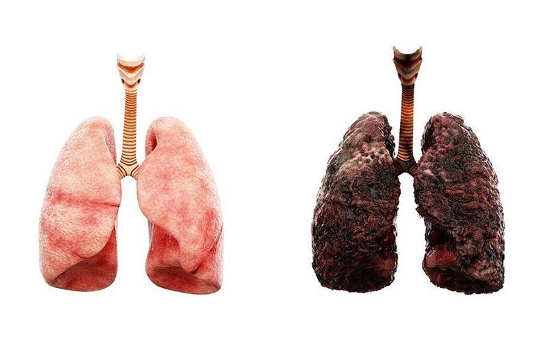 Nhiều người lo ngại bệnh ung thư phổi có lây không?