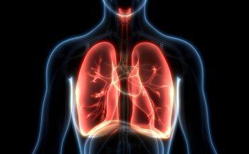 Ung thư phổi di căn não và 1 số thông tin cần biết