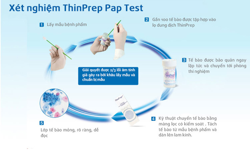 Tầm soát ung thư cổ tử cung bằng phương pháp ThinPrep Pap Test