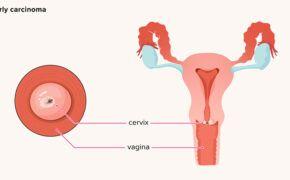 Không thể chủ quan những tác dụng phụ của vacxin ung thư cổ tử cung