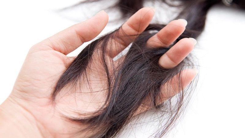 Rụng tóc là biểu hiện đầu tiên khi xạ trị ung thư