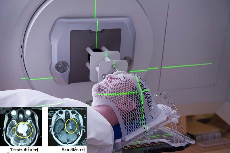 Xạ trị ở một phạm vi lớn trên não có thể khiến người bệnh giảm khả năng nhận thức, mất trí nhớ.