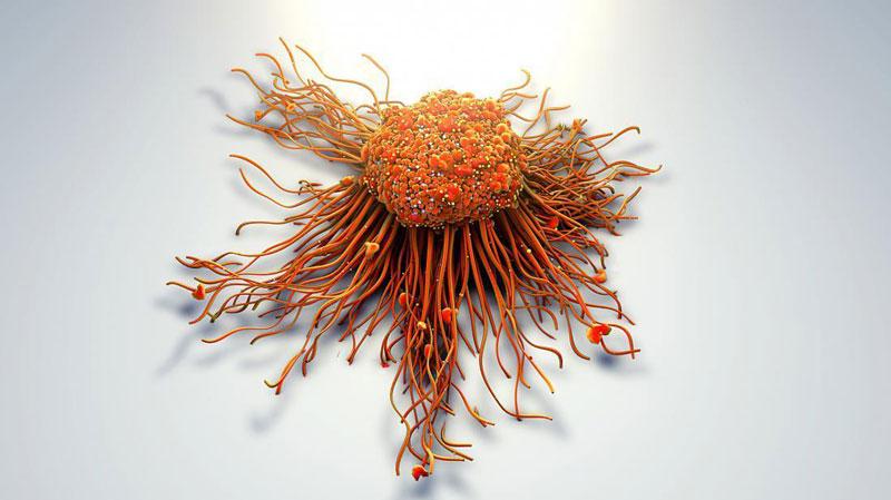 Tế bào ung thư là gì?