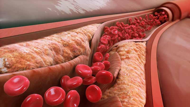 Mỡ máu cao gây xơ vữa động mạch
