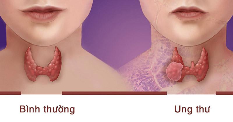 Ung thư tuyến giáp gây nguy hiểm cho cơ thể