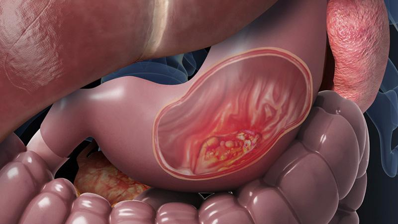 Ung thư dạ dày là bệnh nguy hiểm, có nguy cơ tử vong cao
