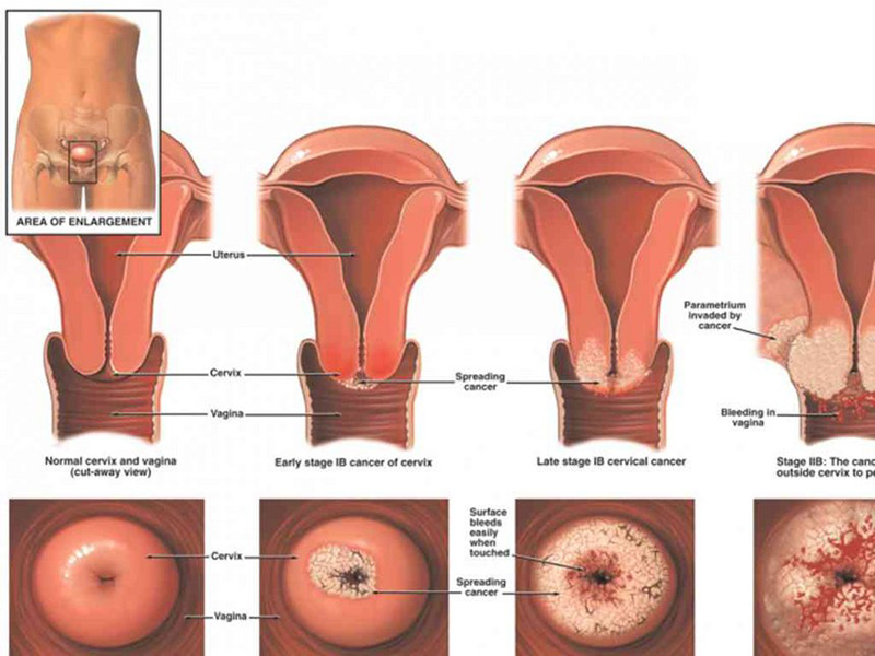 Ung thư do các tế bào phát triển nhanh và khó kiểm soát trong tử cung