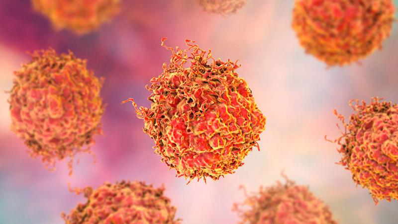 Điều trị ung thư sẽ khó khăn hơn khi bước qua giai đoạn di căn