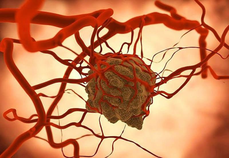 Tế bào ung thư di căn xâm chiếm vào mạch máu
