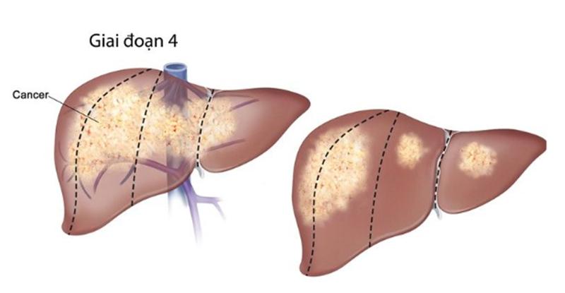 Vùng lan rộng trong gan của các tế bào ung thư ở giai đoạn 4