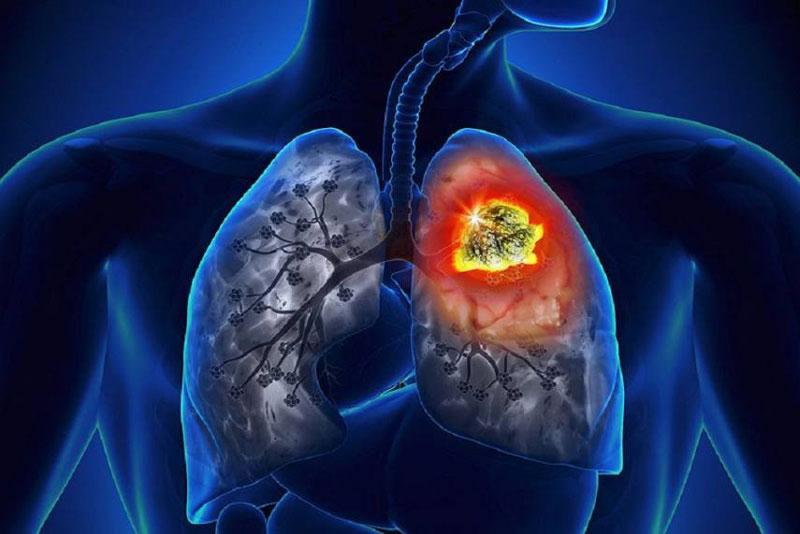 Ung thư phổi giai đoạn cuối có lây không?