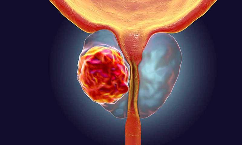 Ung thư tuyến tiền liệt là bệnh nguy hiểm, có nguy cơ gây tử vong cao ở nam giới