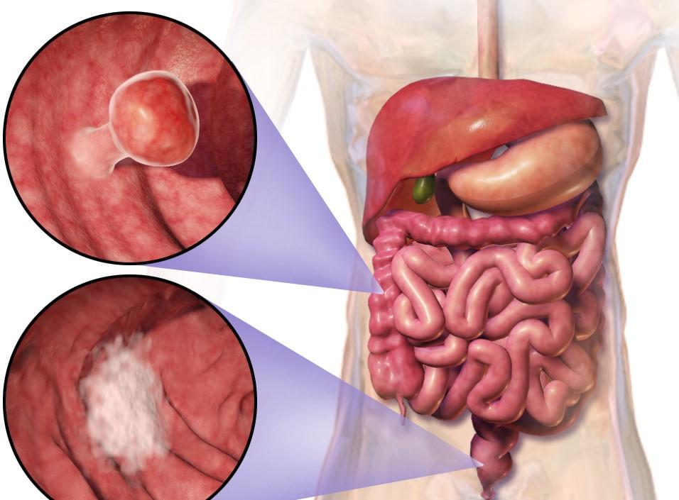 Ung thư trực tràng là gì được nhiều người quan tâm