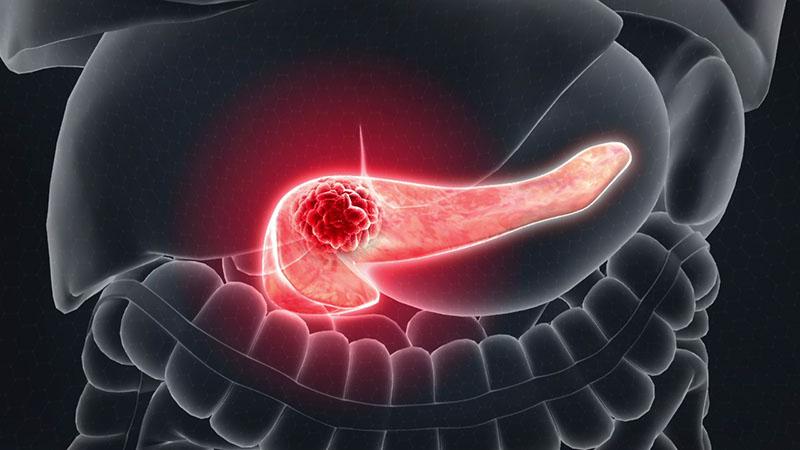 Ung thư tụy khó phát hiện do tuyến tụy nằm phía sau dạ dày