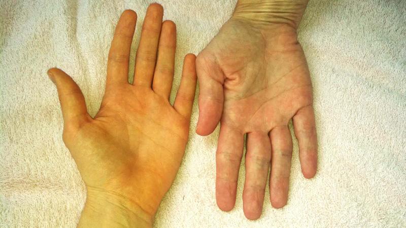 Da vàng và một trong những triệu chứng thường gặp khi mắc ung thư tụy