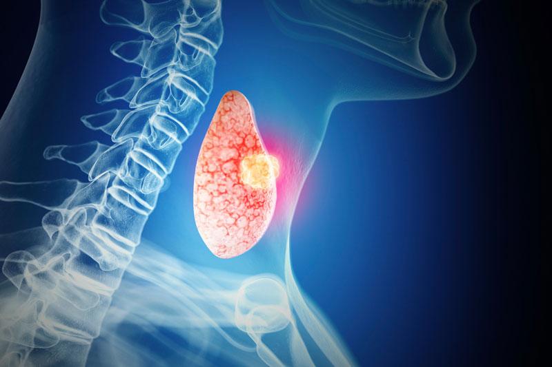 Ung thư tuyến giáp di căn hạch cổ xảy ra khi bệnh ở giai đoạn 4