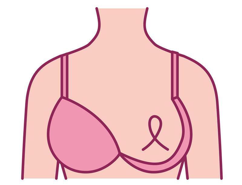 Ung thư vú giai đoạn đầu có thể chữa khỏi nếu được sàng lọc và điều trị sớm