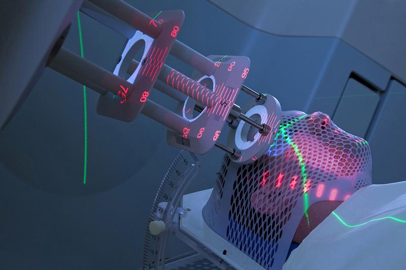 Xạ trị ngoài là biện pháp sử dụng máy gia tốc tuyến tính chiếu các tia bức xạ vào khu vực có khối u