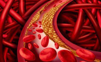 Cách giảm mỡ máu hiệu quả không cần dùng thuốc