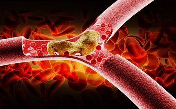 Cách giảm mỡ máu không dùng thuốc an toàn nhất hiện nay