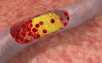 Các phương pháp hạ mỡ máu tại nhà đơn giản và hiệu quả nhất