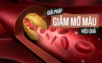 Hướng dẫn các cách giảm mỡ máu nhanh, hiệu quả nhất