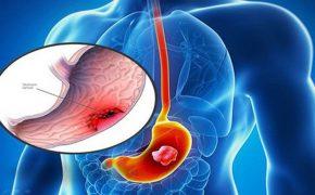 Tìm hiểu nguyên nhân ung thư dạ dày và cách phòng ngừa hiệu quả
