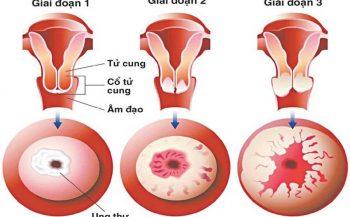 Tìm hiểu dấu hiệu ung thư tử cung giai đoạn đầu để điều trị hiệu quả