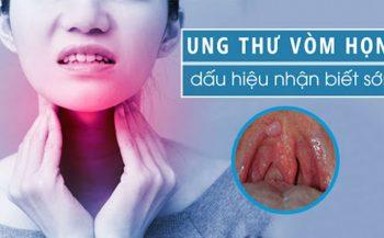 Biểu hiện ung thư vòm họng và cách phòng ngừa bệnh hữu hiệu