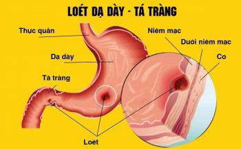 Viêm loét dạ dày hành tá tràng: Triệu chứng và cách điều trị