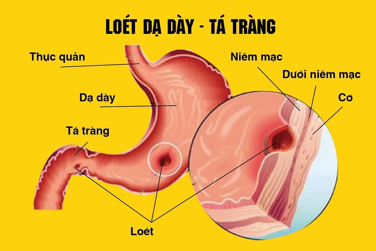 viem-loet-da-day-hanh-ta-trang1